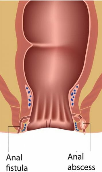 Anal Abscess & Fistula Treatment Atlanta