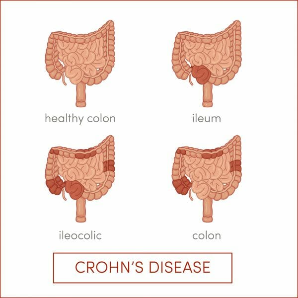 Crohn's Disease Treatment Atlanta