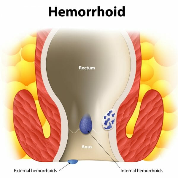 Hemorrhoid Treatment Specialists Atlanta