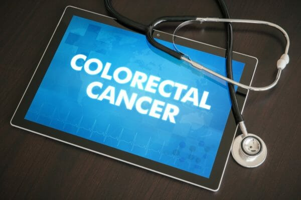 Colorectal cancer rate rise among young adults