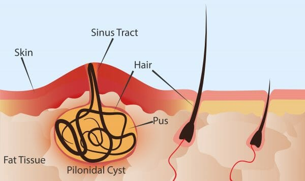 Pilonidal Cyst Treatment in Atlanta