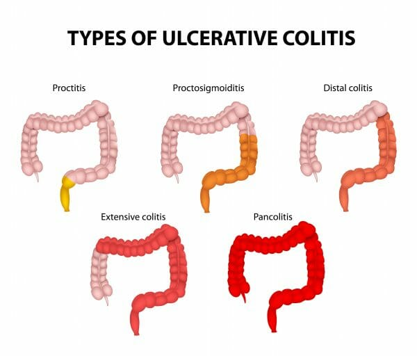 Colon Ulcerative Colitis Treatment Atlanta